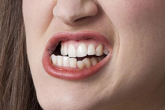 digrignare denti