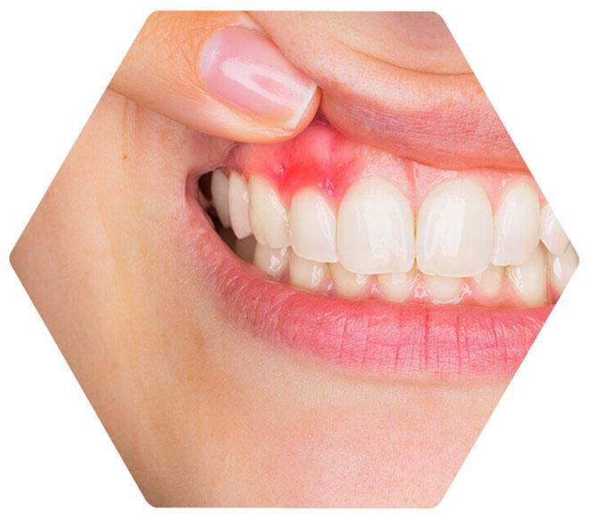 Igiene dentale e gengivite