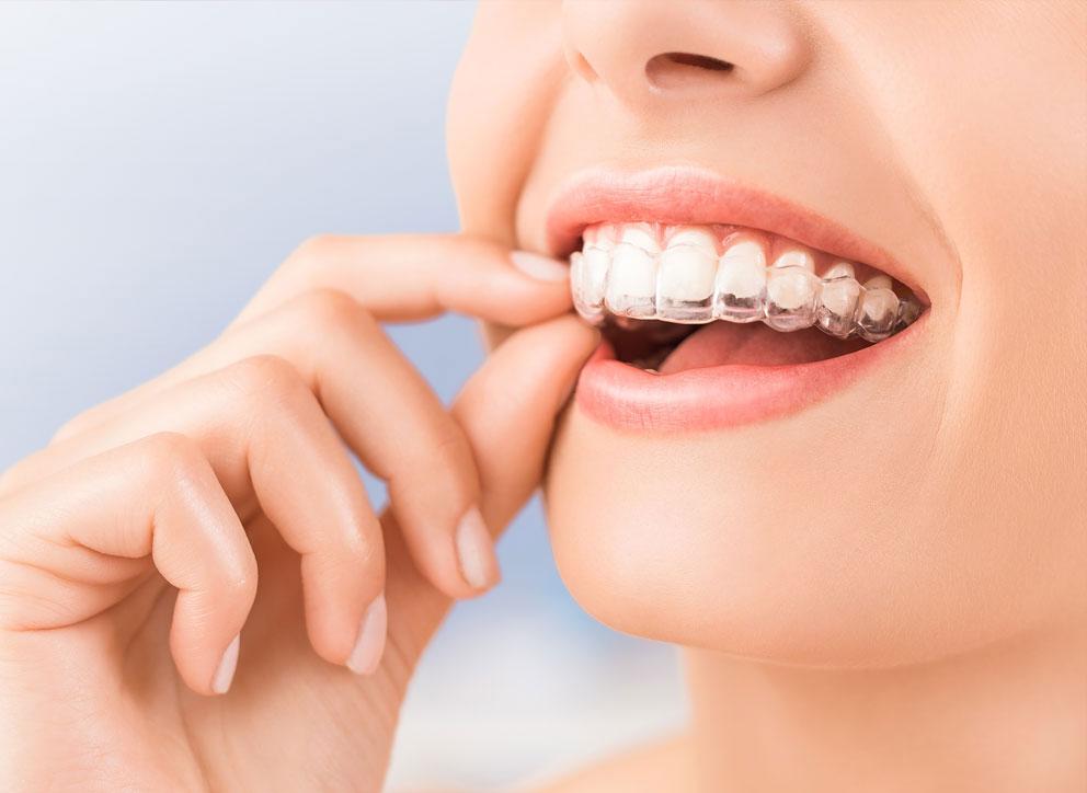 Ortodonzia invisibile con Invisalign